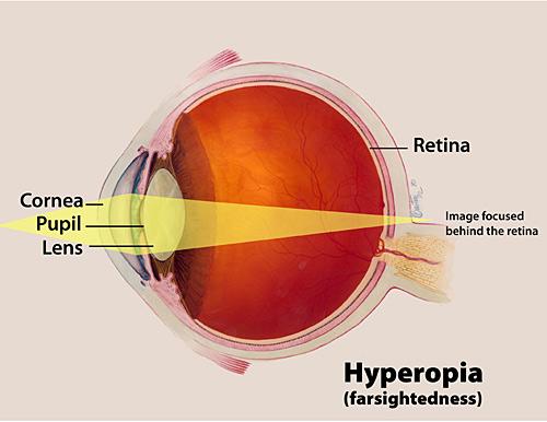 Hyperopia - Cross Section