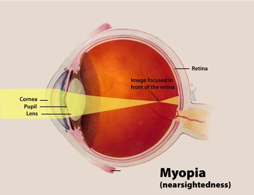 Myopia - Cross Section