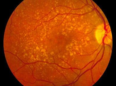Retinal Picture - Macular Degeneration
